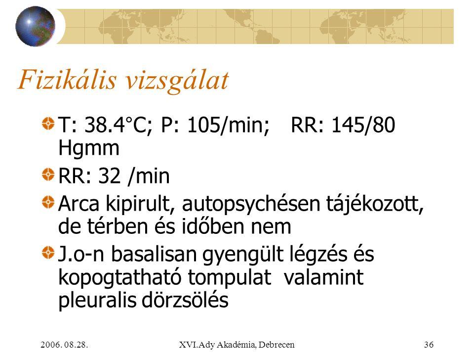 2006. 08.28.XVI.Ady Akadémia, Debrecen36 Fizikális vizsgálat T: 38.4°C; P: 105/min; RR: 145/80 Hgmm RR: 32 /min Arca kipirult, autopsychésen tájékozot