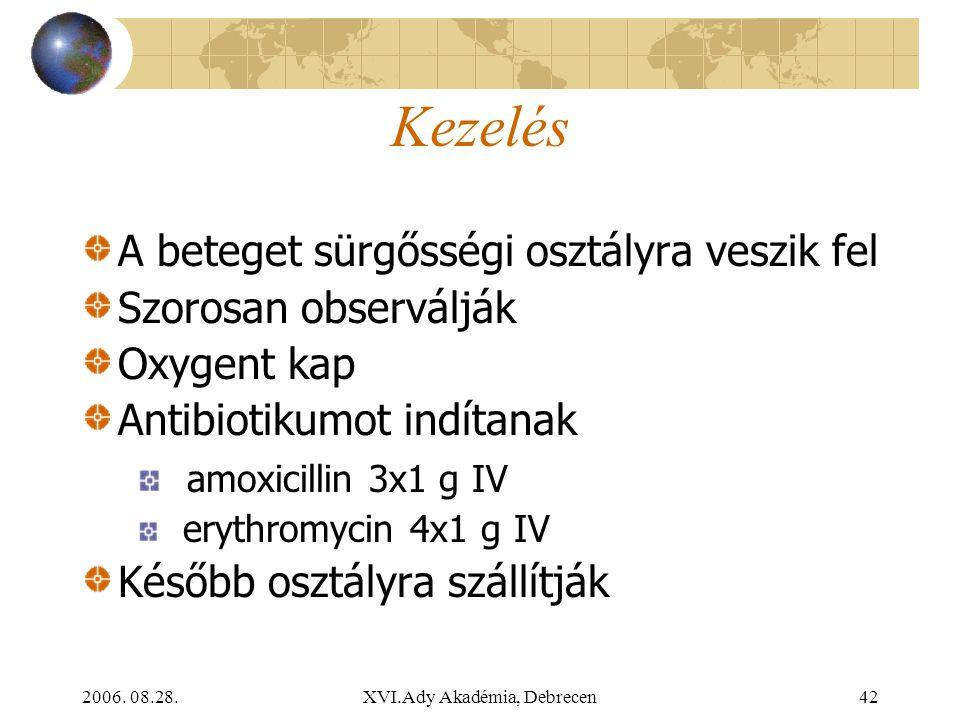 2006. 08.28.XVI.Ady Akadémia, Debrecen42 Kezelés A beteget sürgősségi osztályra veszik fel Szorosan observálják Oxygent kap Antibiotikumot indítanak a