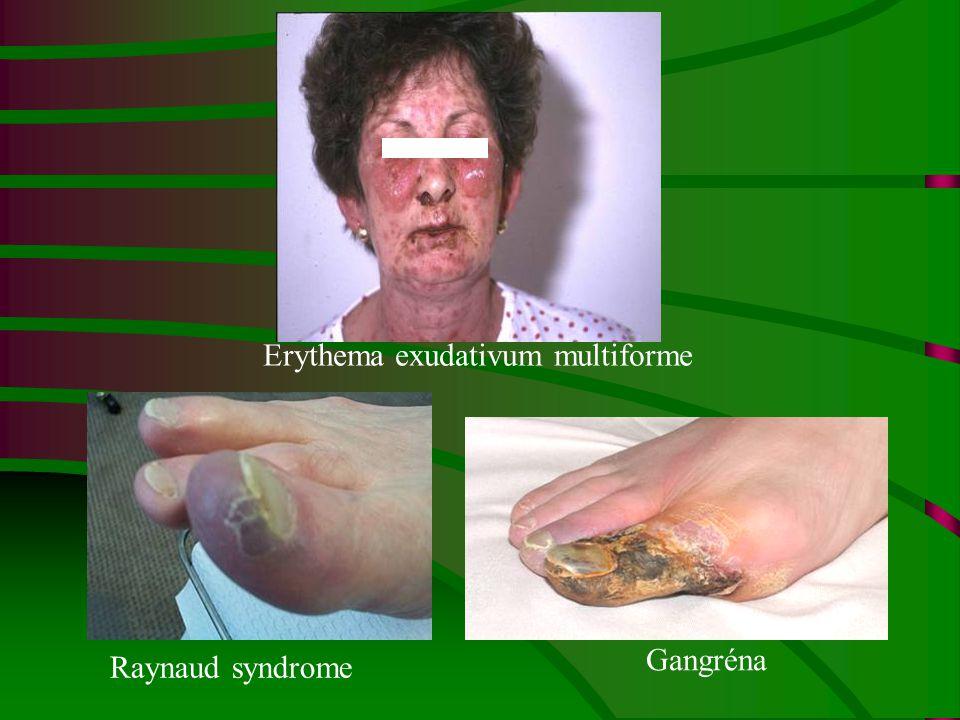 Erythema exudativum multiforme Raynaud syndrome Gangréna