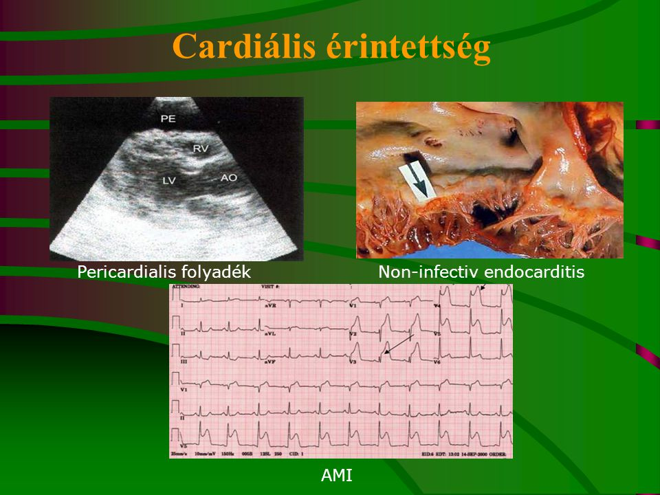 Pericardialis folyadék AMI Non-infectiv endocarditis Cardiális érintettség