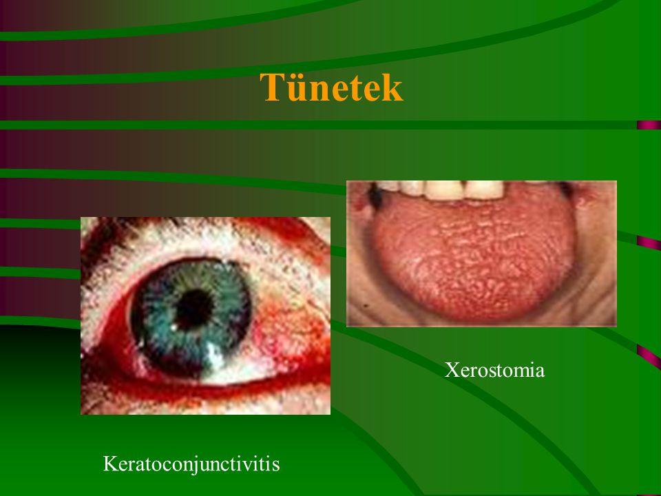 Tünetek Keratoconjunctivitis Xerostomia