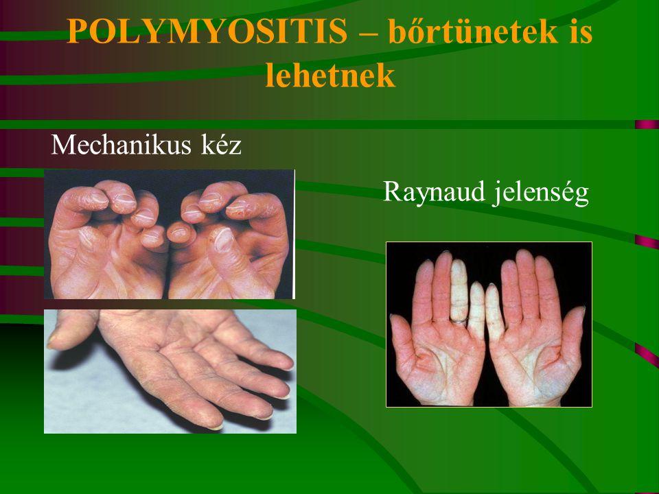 POLYMYOSITIS – bőrtünetek is lehetnek Mechanikus kéz Raynaud jelenség