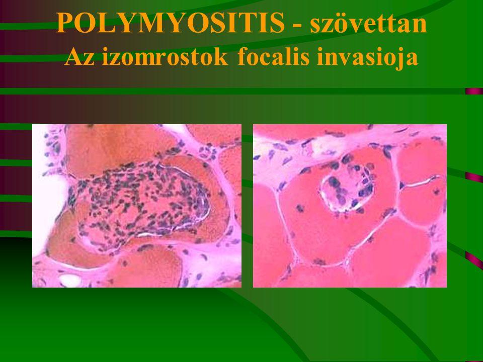 POLYMYOSITIS - szövettan Az izomrostok focalis invasioja