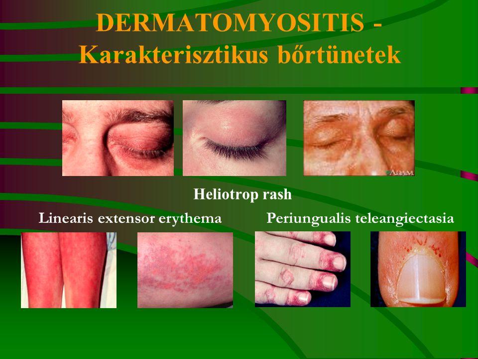 DERMATOMYOSITIS - Karakterisztikus bőrtünetek Heliotrop rash Periungualis teleangiectasiaLinearis extensor erythema