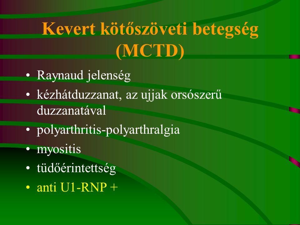 Kevert kötőszöveti betegség (MCTD) Raynaud jelenség kézhátduzzanat, az ujjak orsószerű duzzanatával polyarthritis-polyarthralgia myositis tüdőérintettség anti U1-RNP +