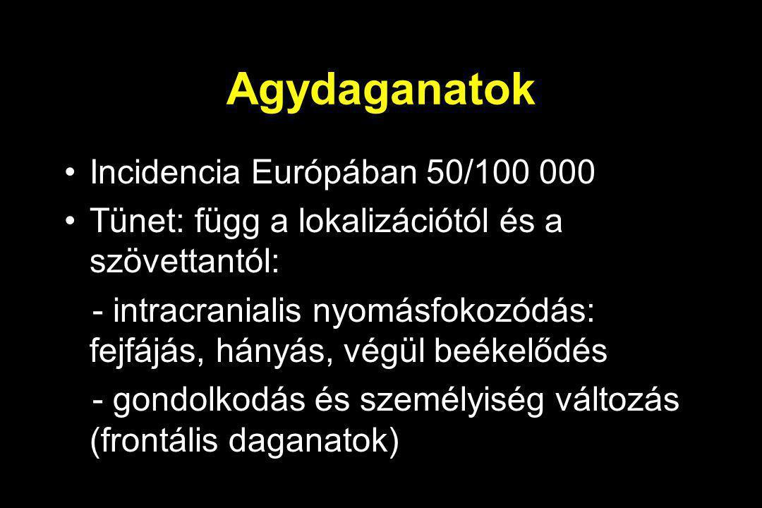 Agydaganatok Incidencia Európában 50/100 000 Tünet: függ a lokalizációtól és a szövettantól: - intracranialis nyomásfokozódás: fejfájás, hányás, végül