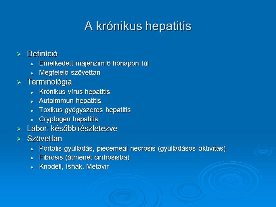 A krónikus hepatitis  Definíció Emelkedett májenzim 6 hónapon túl Emelkedett májenzim 6 hónapon túl Megfelelő szövettan Megfelelő szövettan  Termino