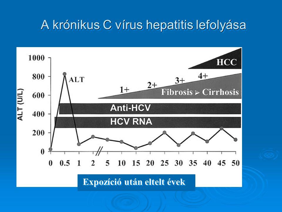 A krónikus C vírus hepatitis lefolyása Expozíció után eltelt évek