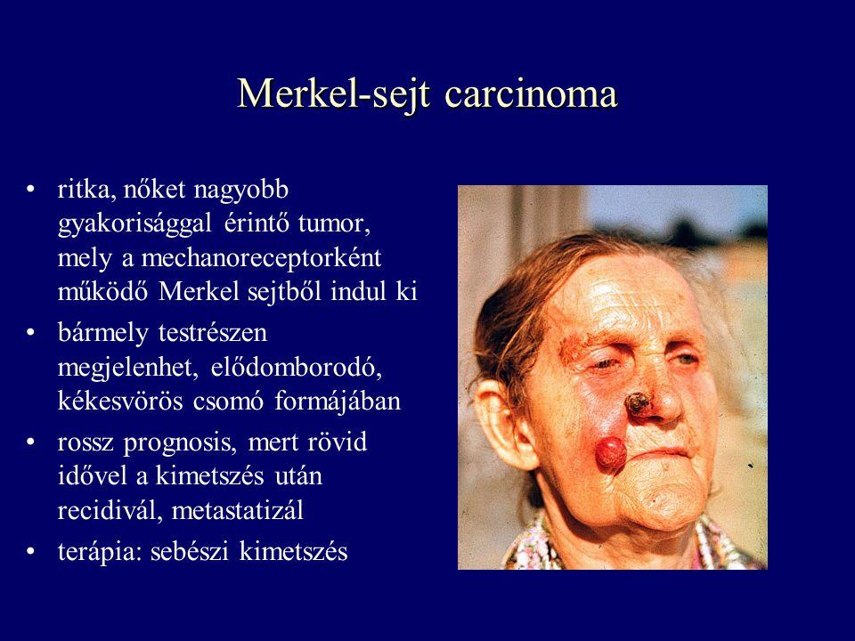 Merkel-sejt carcinoma ritka, nőket nagyobb gyakorisággal érintő tumor, mely a mechanoreceptorként működő Merkel sejtből indul ki bármely testrészen me