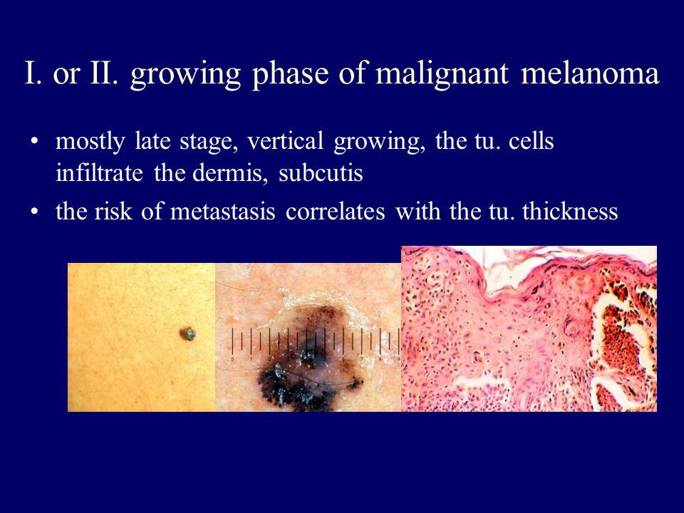 Clinical-histopathologic subtypes Superficial spreading melanoma (70 %) –trunk, womens legs, head, neck, long-standing stable nevus changes –brown-black-blue-pink flat-slightly elevated –irregular-asymmetric border nodular melanoma (10-15 %) –legs, trunk –rapid growth –dark brown-to black papule-dome shaped nodule lentigo maligna melanoma (4-15 %) –head, neck, arms –fair-skinned older –slow growth –5-8 % lentigo maligna as precursor acral lentiginous melanoma (2-8 % ) –palms, soles, beneath the nail plate (Hutchinson sign)