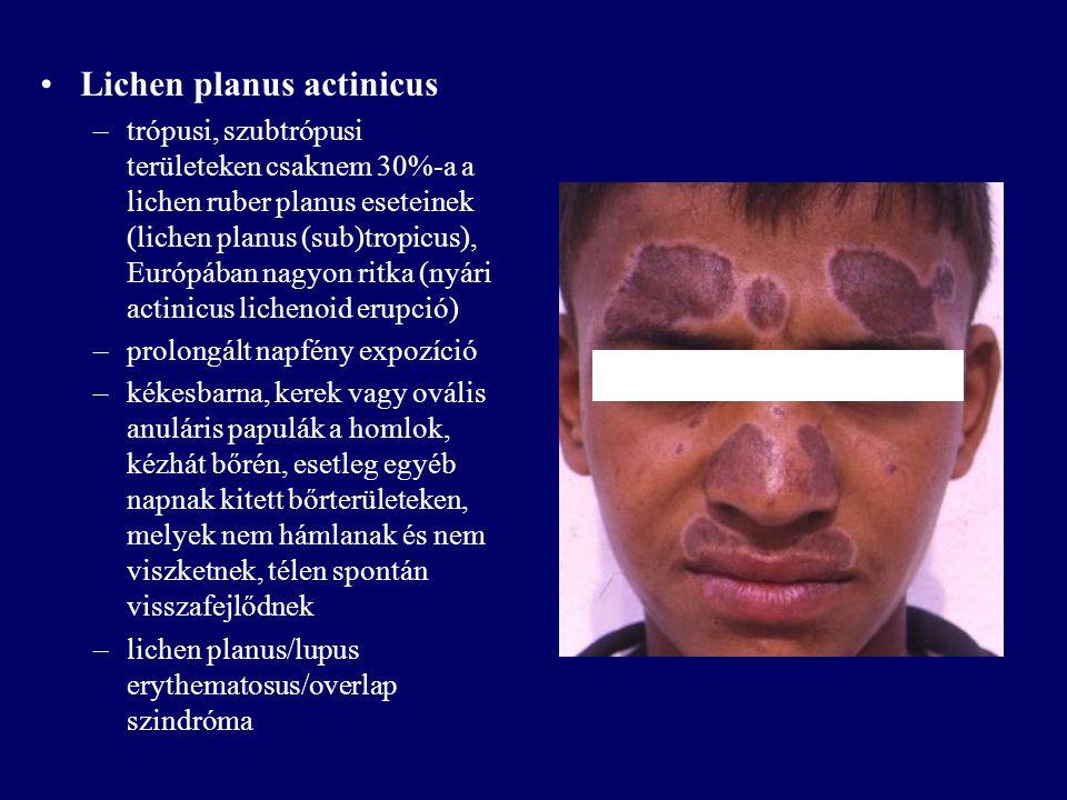 Lichen planus actinicus –trópusi, szubtrópusi területeken csaknem 30%-a a lichen ruber planus eseteinek (lichen planus (sub)tropicus), Európában nagyo