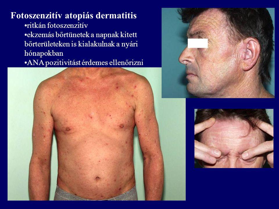 Fotoszenzitív atopiás dermatitis ritkán fotoszenzitív ekzemás bőrtünetek a napnak kitett bőrterületeken is kialakulnak a nyári hónapokban ANA pozitivi