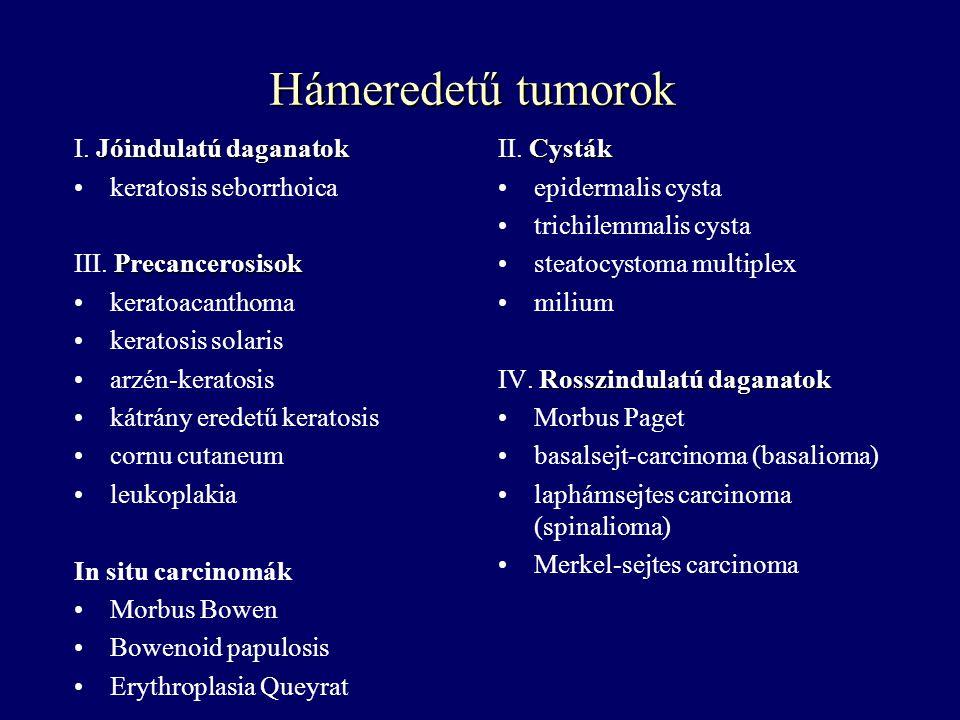Hámeredetű tumorok. Jóindulatú daganatok I. Jóindulatú daganatok keratosis seborrhoica Precancerosisok III. Precancerosisok keratoacanthoma keratosis