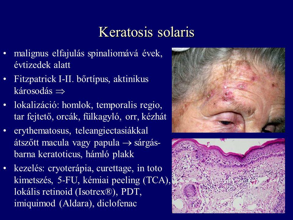 Keratosis solaris malignus elfajulás spinaliomává évek, évtizedek alatt Fitzpatrick I-II. bőrtípus, aktinikus károsodás  lokalizáció: homlok, tempora