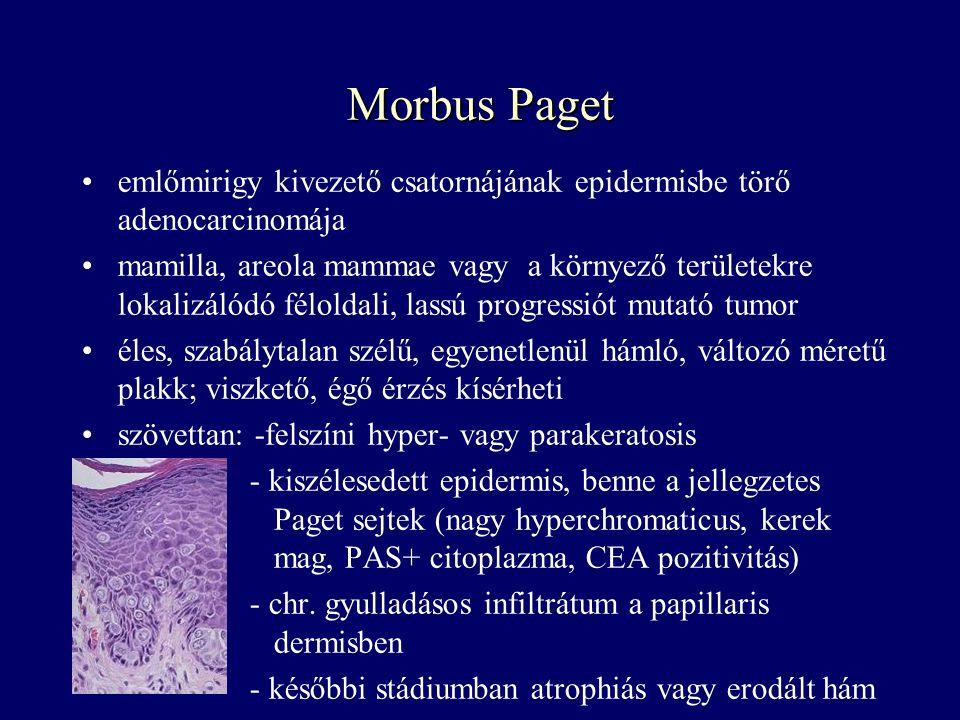 Morbus Paget emlőmirigy kivezető csatornájának epidermisbe törő adenocarcinomája mamilla, areola mammae vagy a környező területekre lokalizálódó félol