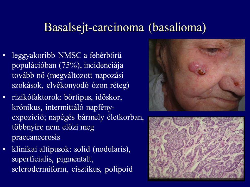 Basalsejt-carcinoma (basalioma) leggyakoribb NMSC a fehérbőrű populációban (75%), incidenciája tovább nő (megváltozott napozási szokások, elvékonyodó