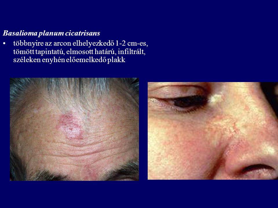 Basalioma planum cicatrisans többnyire az arcon elhelyezkedő 1-2 cm-es, tömött tapintatú, elmosott határú, infiltrált, széleken enyhén előemelkedő pla