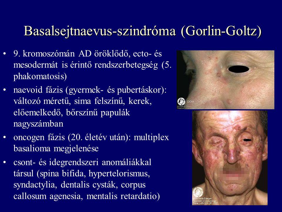 Basalsejtnaevus-szindróma (Gorlin-Goltz) 9. kromoszómán AD öröklődő, ecto- és mesodermát is érintő rendszerbetegség (5. phakomatosis) naevoid fázis (g