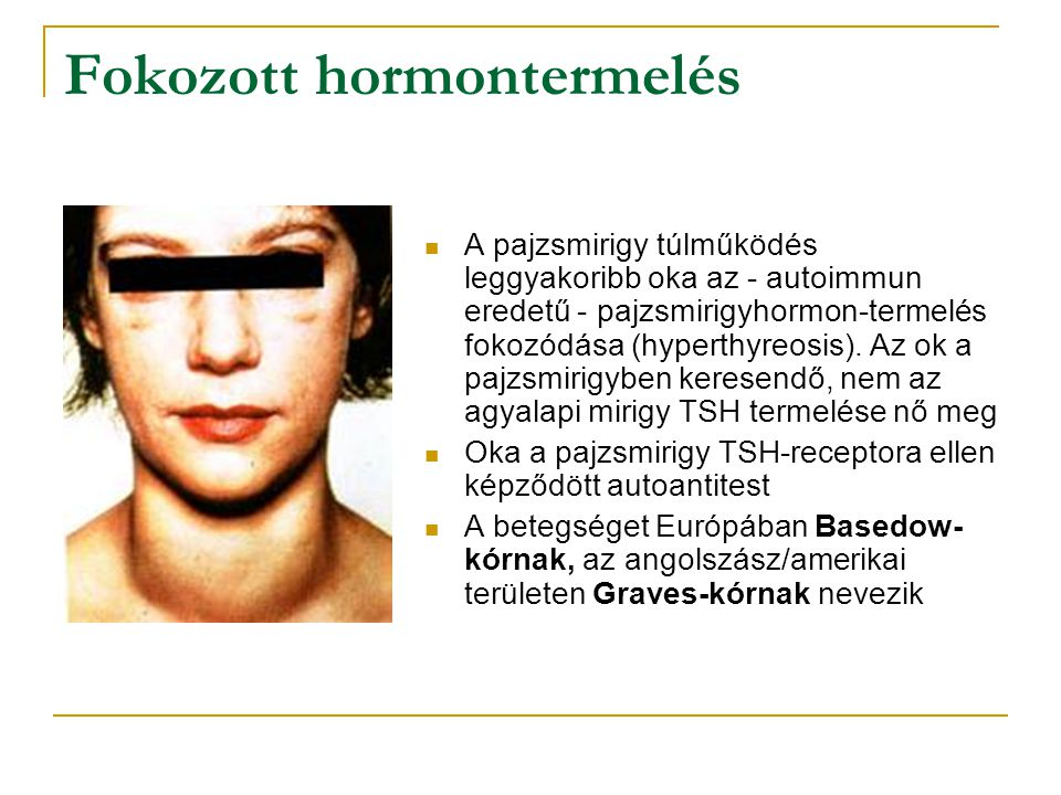 Fokozott hormontermelés A pajzsmirigy túlműködés leggyakoribb oka az - autoimmun eredetű - pajzsmirigyhormon-termelés fokozódása (hyperthyreosis). Az