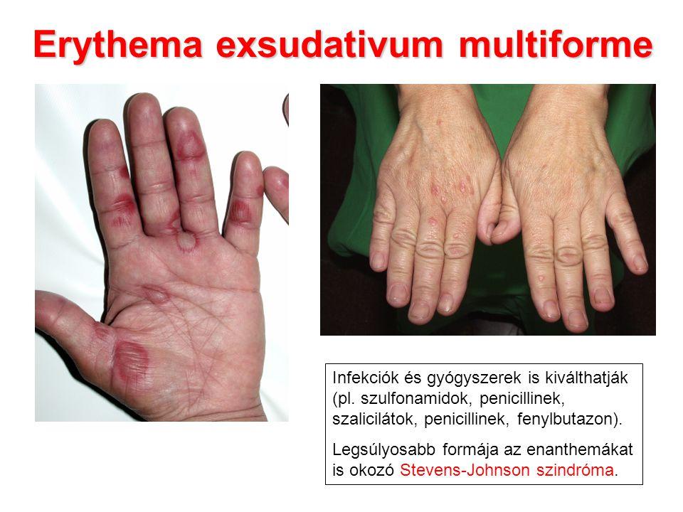 Erythema exsudativum multiforme Infekciók és gyógyszerek is kiválthatják (pl. szulfonamidok, penicillinek, szalicilátok, penicillinek, fenylbutazon).