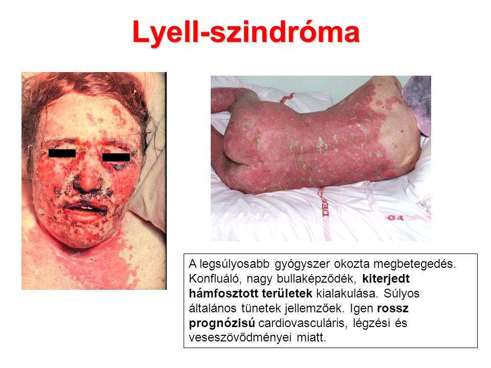 Lyell-szindróma A legsúlyosabb gyógyszer okozta megbetegedés. Konfluáló, nagy bullaképződék, kiterjedt hámfosztott területek kialakulása. Súlyos által
