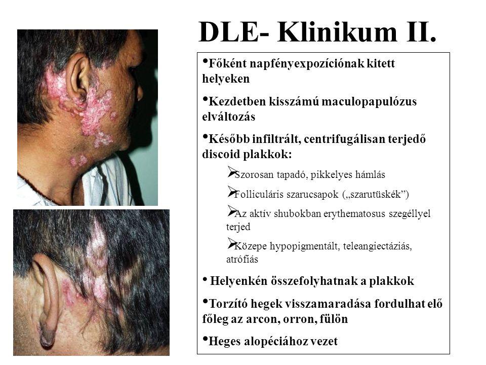 DLE- Klinikum II. Főként napfényexpozíciónak kitett helyeken Kezdetben kisszámú maculopapulózus elváltozás Később infiltrált, centrifugálisan terjedő