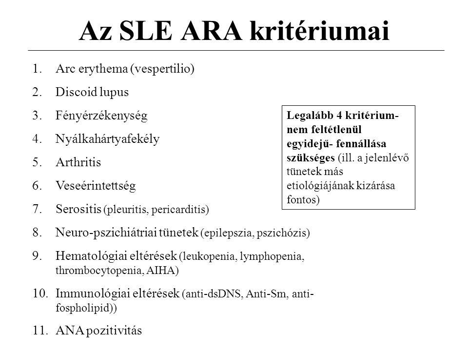Az SLE ARA kritériumai 1.Arc erythema (vespertilio) 2.Discoid lupus 3.Fényérzékenység 4.Nyálkahártyafekély 5.Arthritis 6.Veseérintettség 7.Serositis (