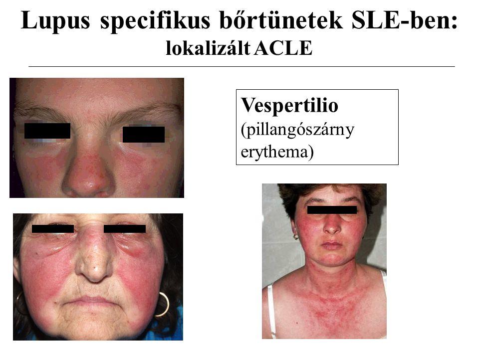 Lupus specifikus bőrtünetek SLE-ben: lokalizált ACLE Vespertilio (pillangószárny erythema)