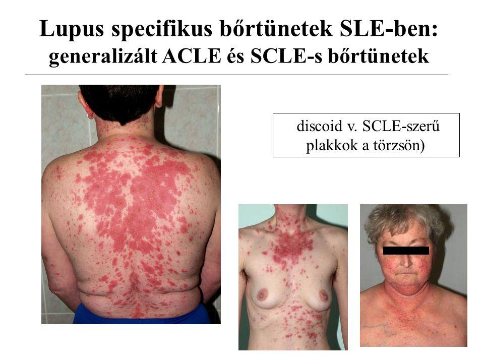 Lupus specifikus bőrtünetek SLE-ben: generalizált ACLE és SCLE-s bőrtünetek discoid v. SCLE-szerű plakkok a törzsön)