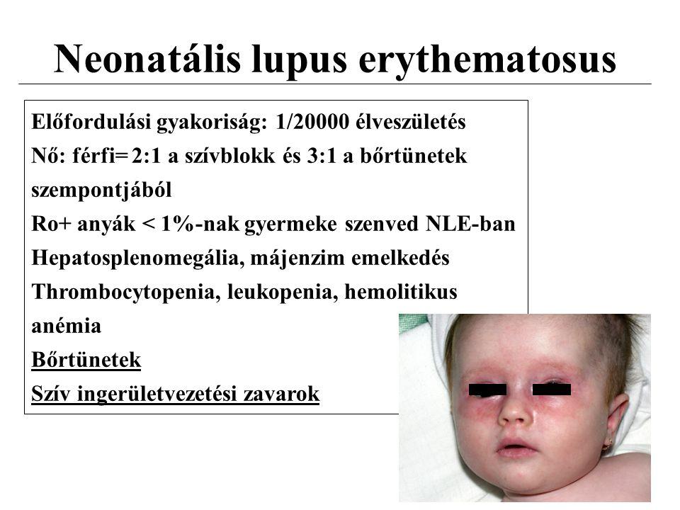 Neonatális lupus erythematosus Előfordulási gyakoriság: 1/20000 élveszületés Nő: férfi= 2:1 a szívblokk és 3:1 a bőrtünetek szempontjából Ro+ anyák <