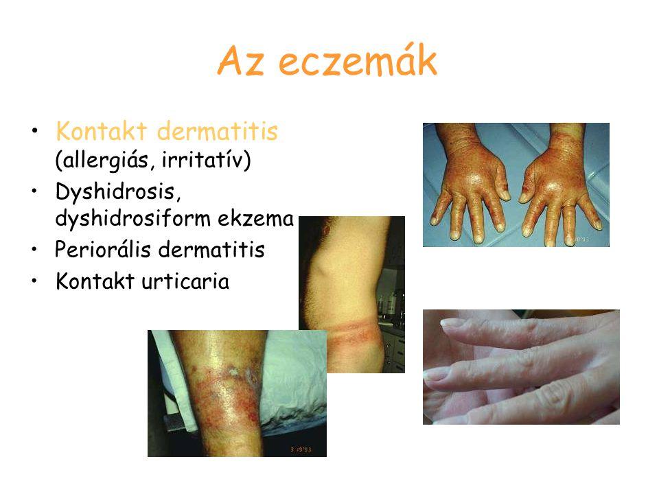 Az eczemák Kontakt dermatitis (allergiás, irritatív) Dyshidrosis, dyshidrosiform ekzema Periorális dermatitis Kontakt urticaria