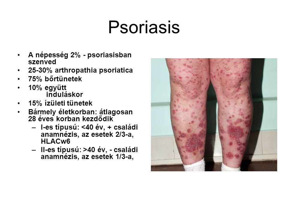 Psoriasis A népesség 2% - psoriasisban szenved 25-30% arthropathia psoriatica 75% bőrtünetek 10% együtt induláskor 15% ízületi tünetek Bármely életkor