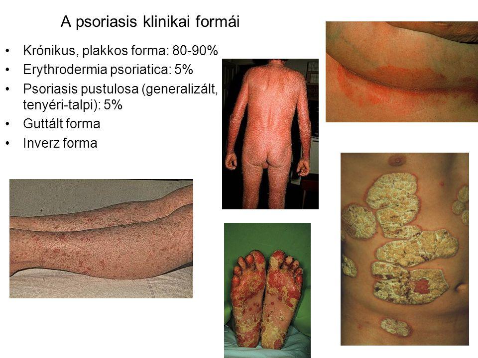 A psoriasis klinikai formái Krónikus, plakkos forma: 80-90% Erythrodermia psoriatica: 5% Psoriasis pustulosa (generalizált, tenyéri-talpi): 5% Guttált