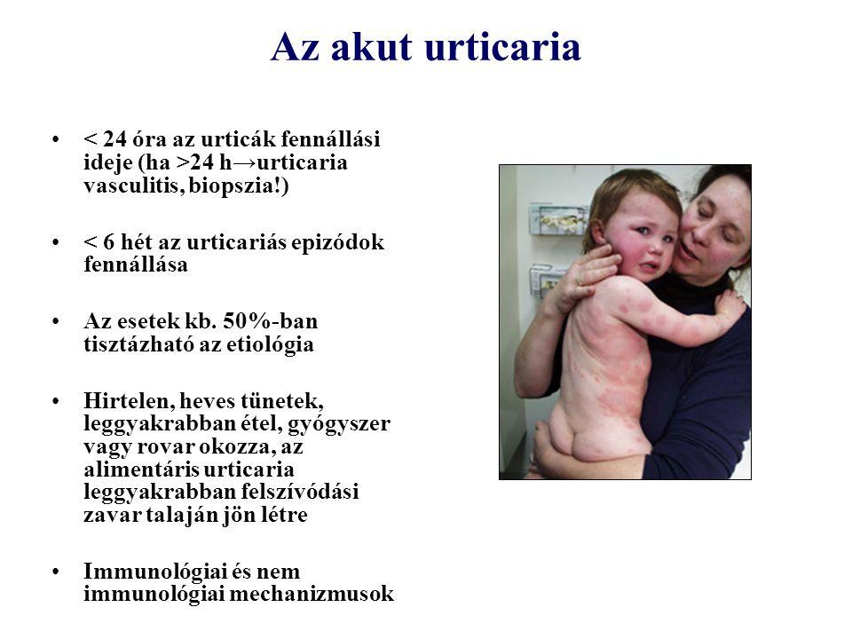 Az akut urticaria 24 h→urticaria vasculitis, biopszia!) < 6 hét az urticariás epizódok fennállása Az esetek kb. 50%-ban tisztázható az etiológia Hirte