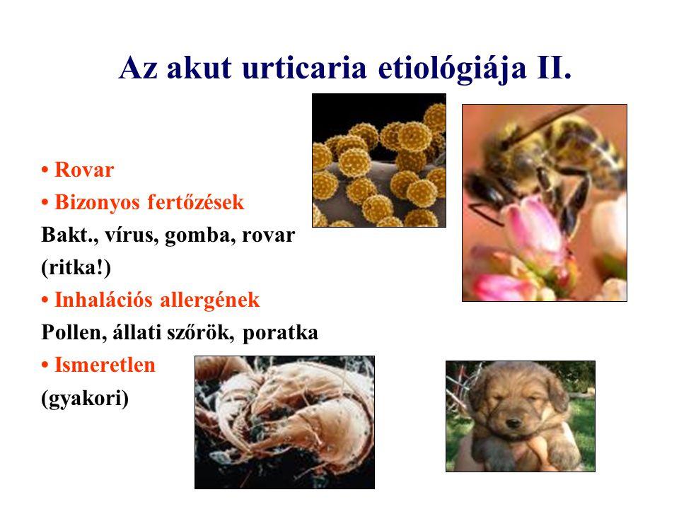 Az akut urticaria etiológiája II. Rovar Bizonyos fertőzések Bakt., vírus, gomba, rovar (ritka!) Inhalációs allergének Pollen, állati szőrök, poratka I