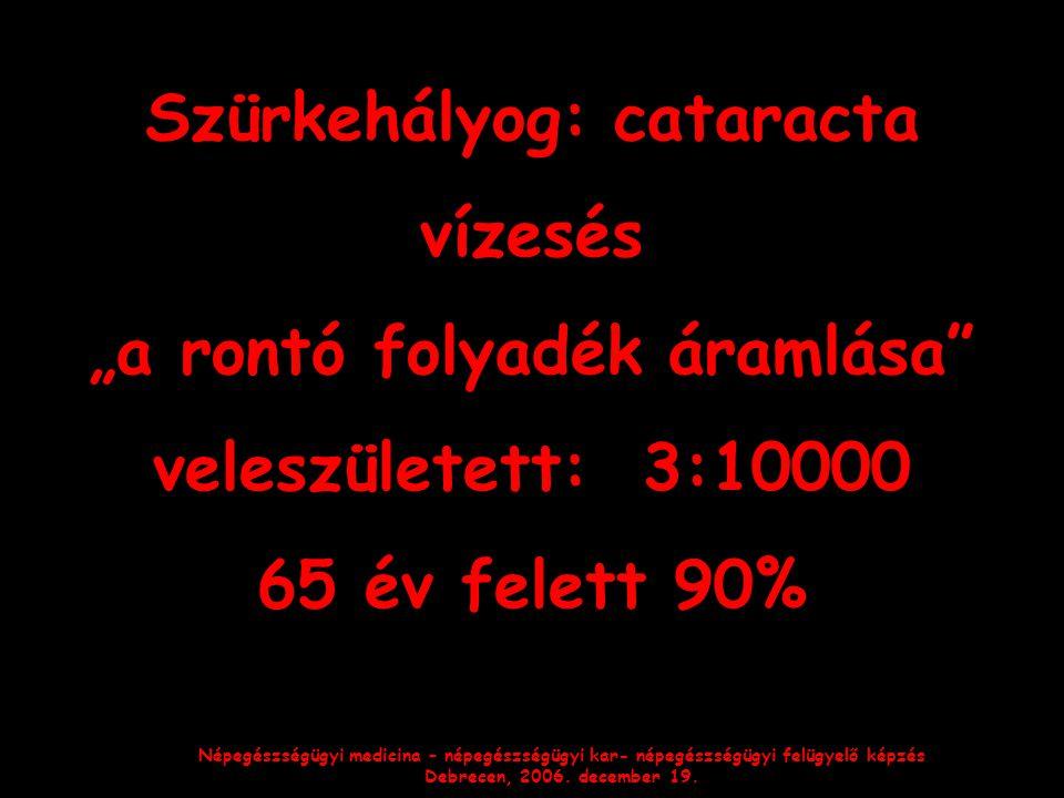 """Népegészségügyi medicina – népegészségügyi kar- népegészségügyi felügyelő képzés Debrecen, 2006. december 19. Szürkehályog: cataracta vízesés """"a rontó"""
