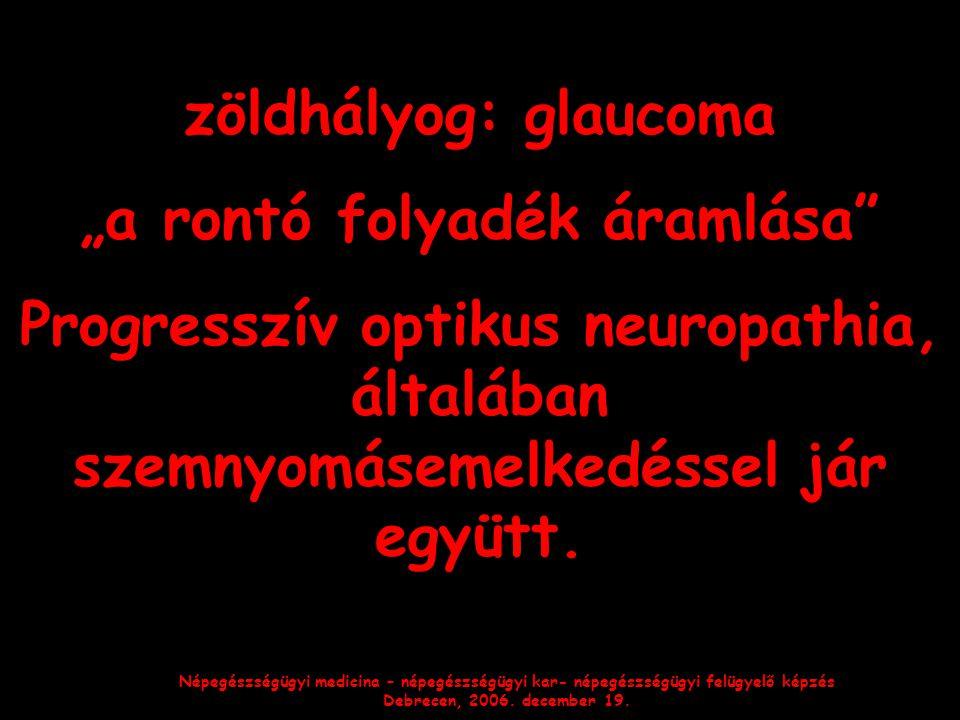"""Népegészségügyi medicina – népegészségügyi kar- népegészségügyi felügyelő képzés Debrecen, 2006. december 19. zöldhályog: glaucoma """"a rontó folyadék á"""