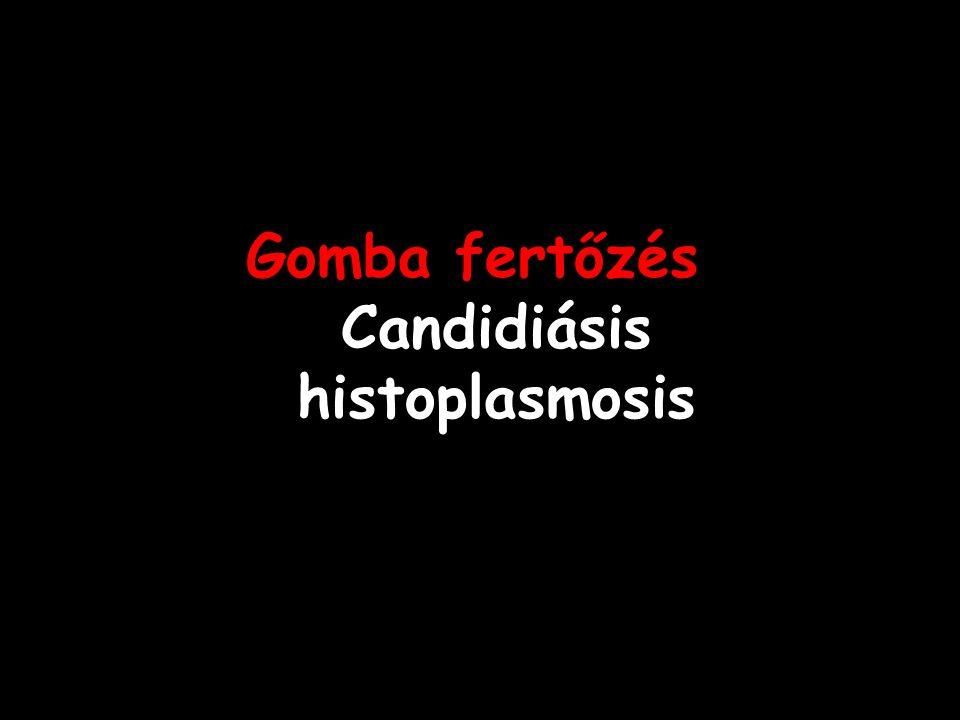 Gomba fertőzés Candidiásis histoplasmosis