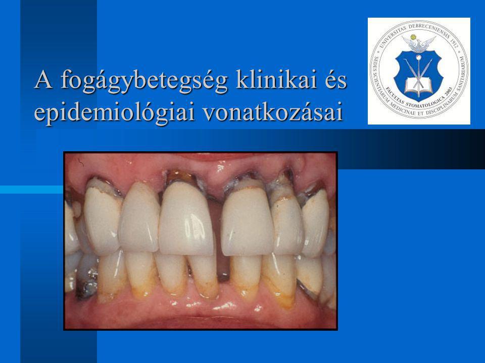 A dohányzással kapcsolatos epidemiológiai megállapítások Érrendszerre, immunrendszerre, a gyulladásos válaszreakció kialakulására kifejtett hatások A parodonto-patogén baktériumok magas szintje (A.a,P.i) A dohányosoknak kevesebb foguk van, és a fogaikat hamarabb veszítik el A kialakult hatások dózisfüggőek (>20) A destruktív parodontitis valószínűsége 2.3- 3.4x