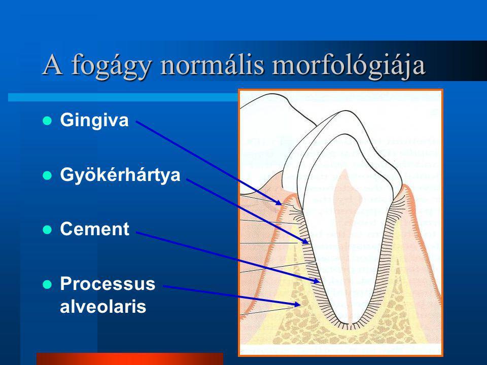 IDDM mint a parodontitis rizikófaktora IDDM mint a parodontitis rizikófaktora A destruktív parodontitis prevalenciája 3- 4x A nem kontrollált, vagy a fiatalkorban kezdődő diabetes magas kockázati tényező A csontpusztulás gyakorisága 4.2x