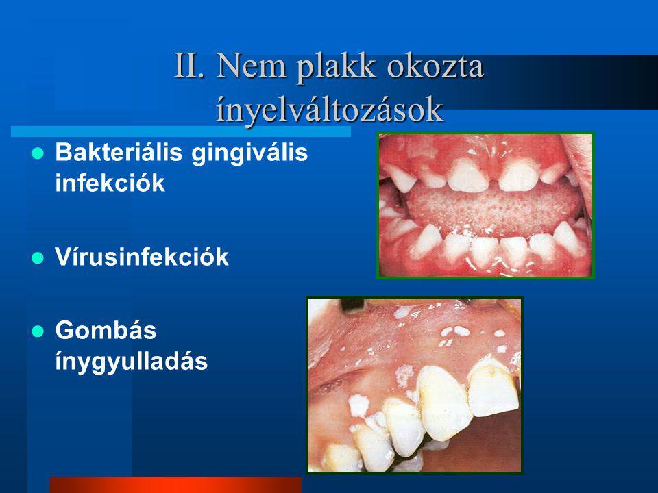 II. Nem plakk okozta ínyelváltozások Bakteriális gingivális infekciók Vírusinfekciók Gombás ínygyulladás