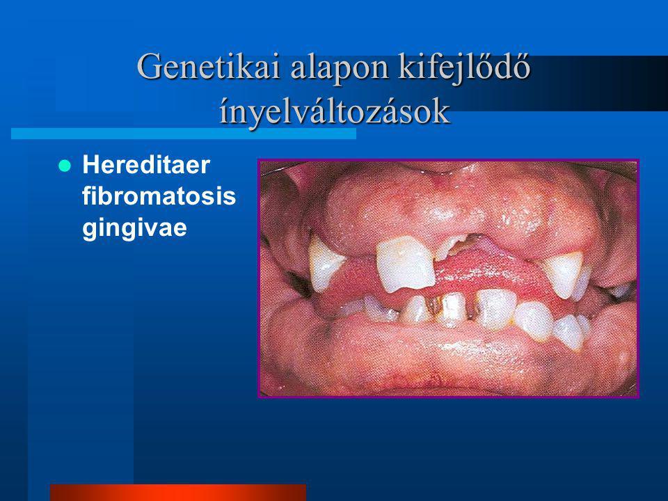 Genetikai alapon kifejlődő ínyelváltozások Hereditaer fibromatosis gingivae