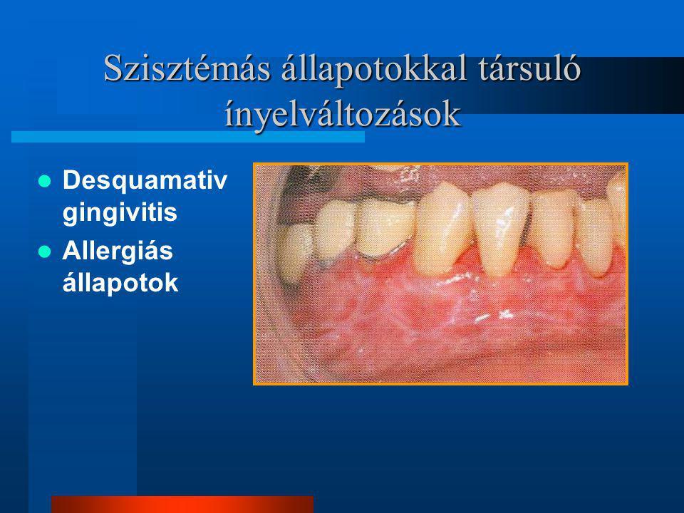 Szisztémás állapotokkal társuló ínyelváltozások Desquamativ gingivitis Allergiás állapotok