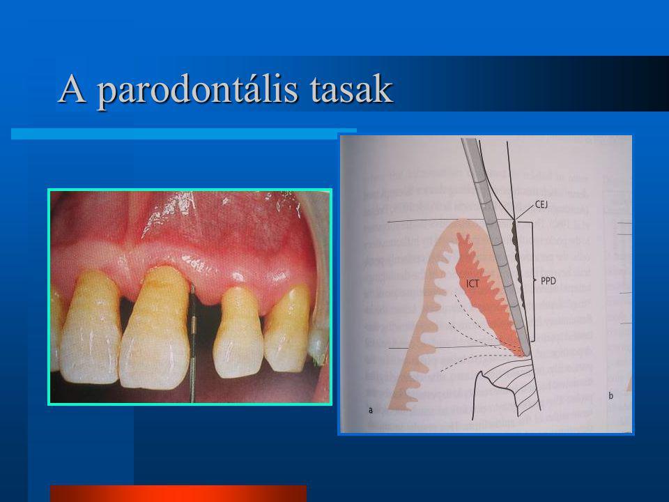 A parodontális tasak