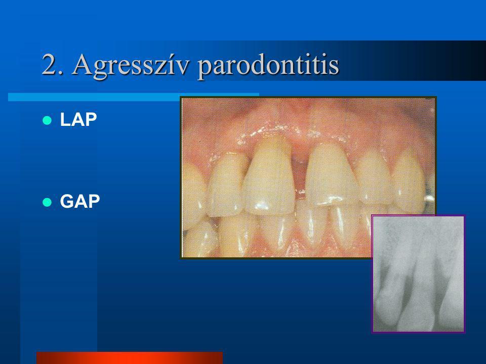 2. Agresszív parodontitis LAP GAP