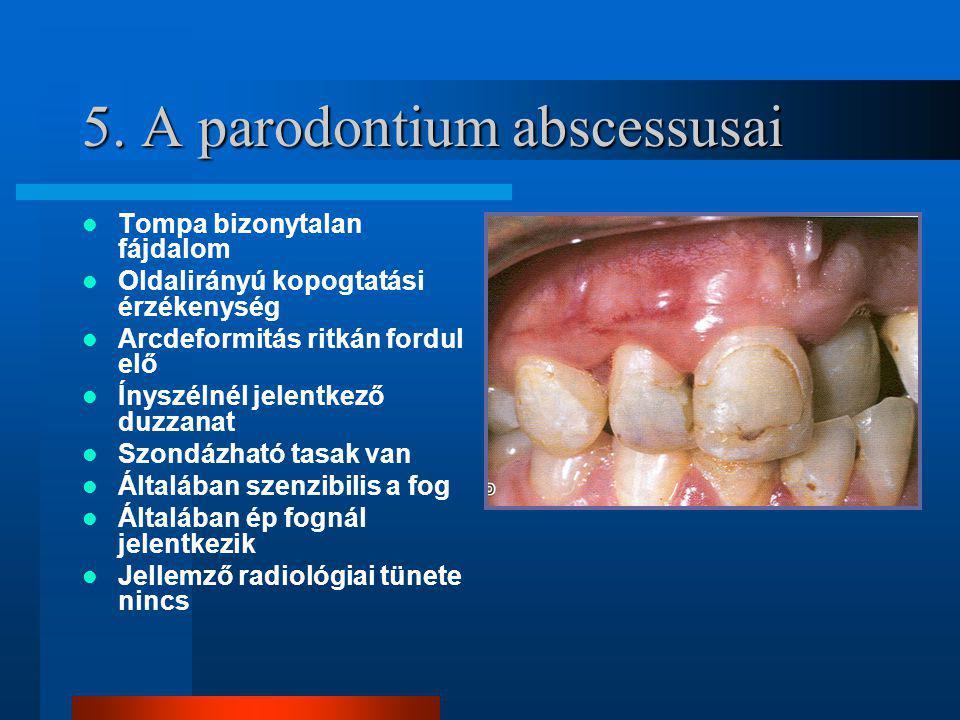 5. A parodontium abscessusai Tompa bizonytalan fájdalom Oldalirányú kopogtatási érzékenység Arcdeformitás ritkán fordul elő Ínyszélnél jelentkező duzz