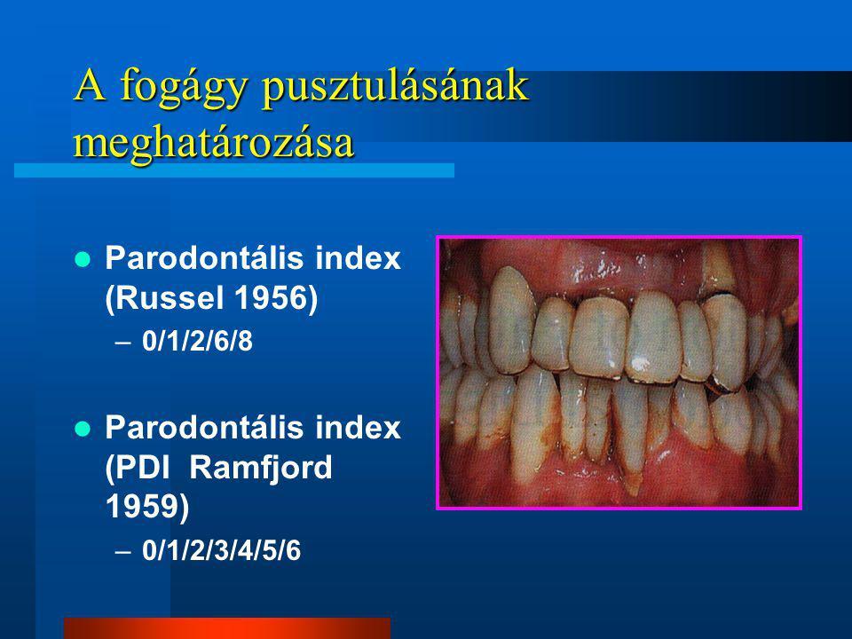 A fogágy pusztulásának meghatározása Parodontális index (Russel 1956) –0/1/2/6/8 Parodontális index (PDI Ramfjord 1959) –0/1/2/3/4/5/6