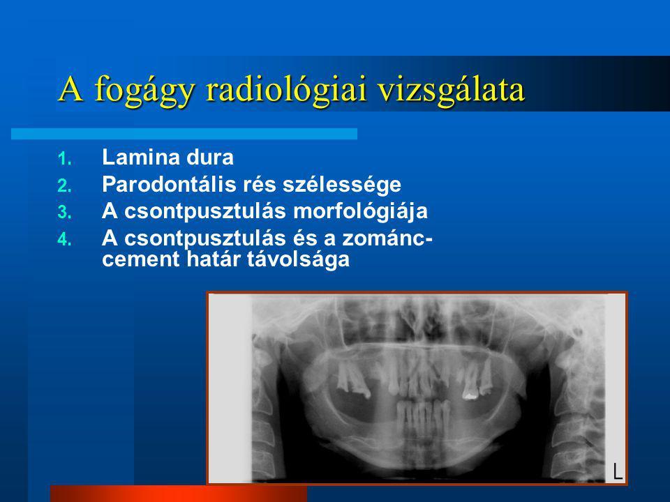 A fogágy radiológiai vizsgálata 1.Lamina dura 2. Parodontális rés szélessége 3.