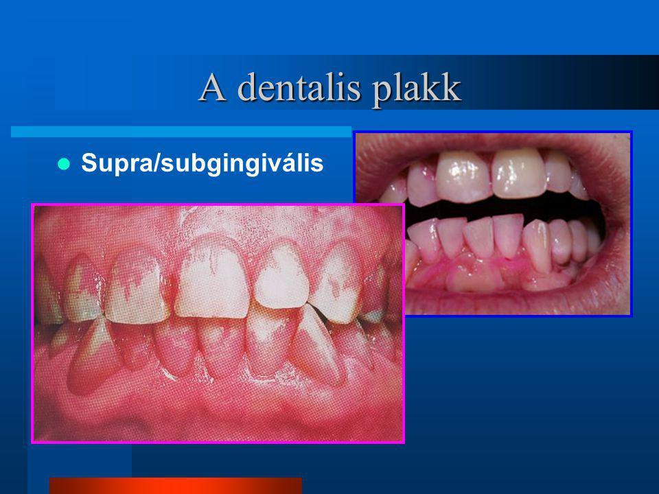 A dentalis plakk Supra/subgingivális
