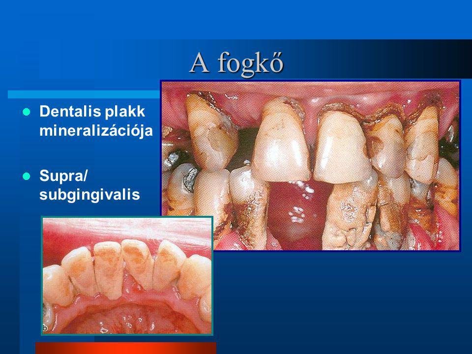 Előrehaladott(advanced) gingivális/parodontalis lézió
